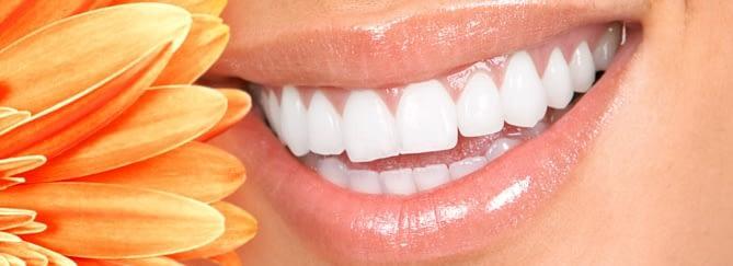 womans teeth